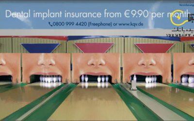 تبلیغ خلاقانه ایمپلنت دندان